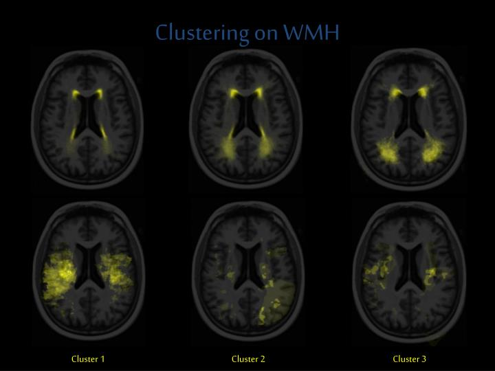 Clustering on WMH