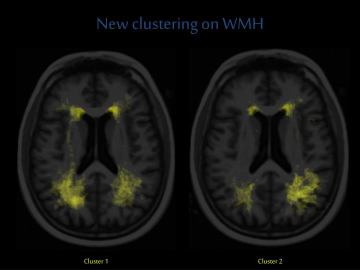 New clustering on WMH