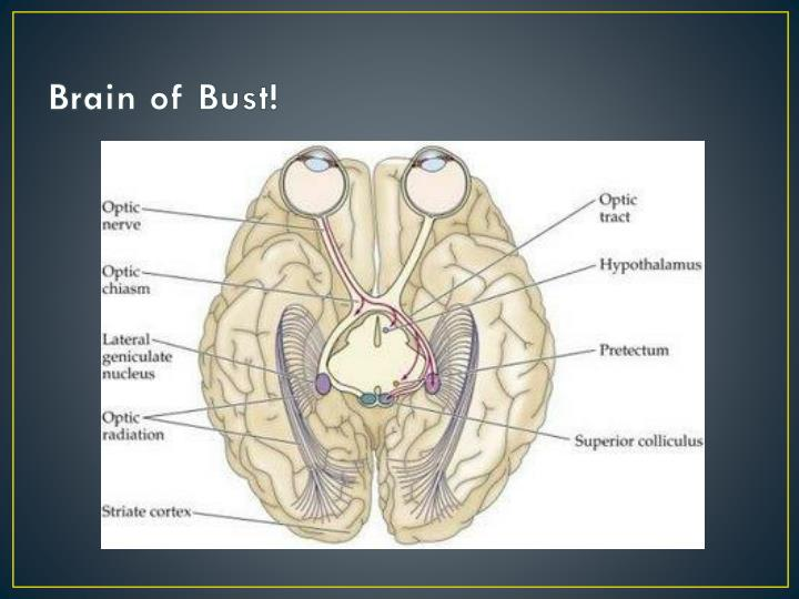 Brain of Bust!