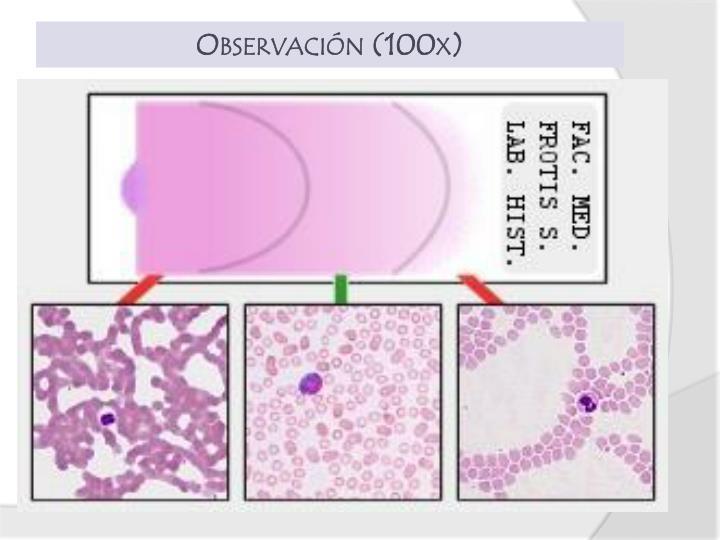 Observación (100x)