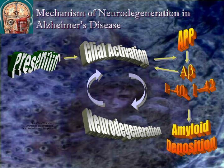 Mechanism of Neurodegeneration in Alzheimer's Disease