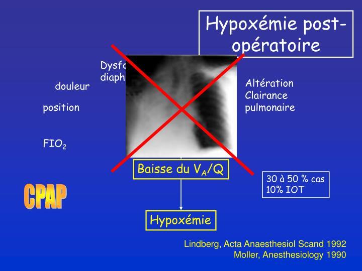 Hypoxémie post-opératoire