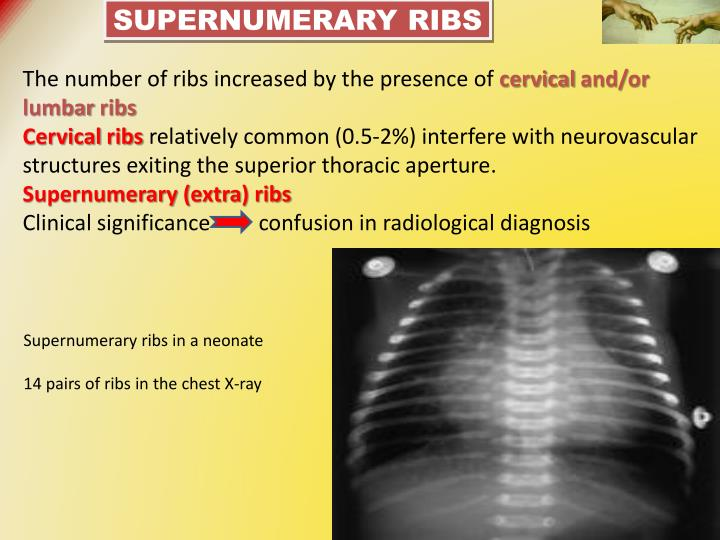 Supernumerary