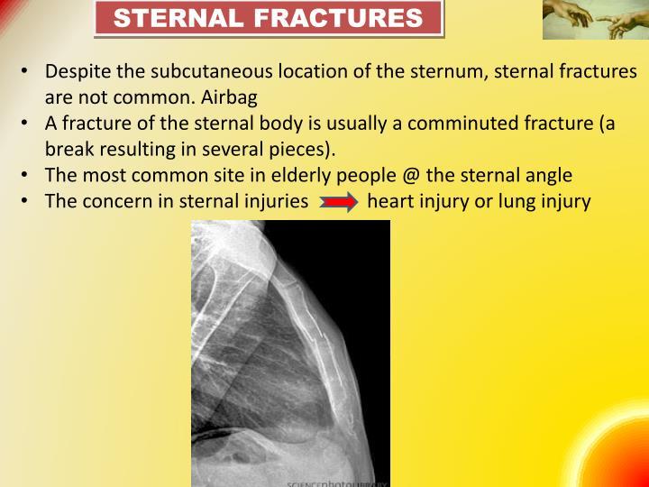 Sternal