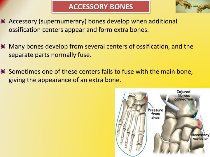 Accessory Bones