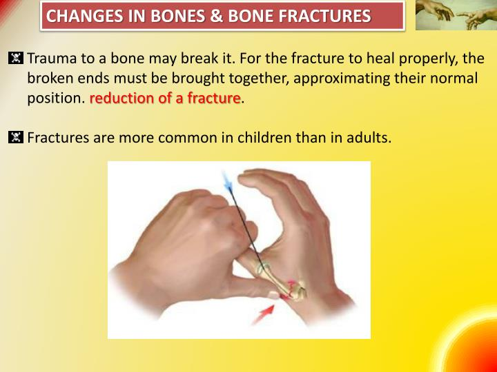 Changes in Bones