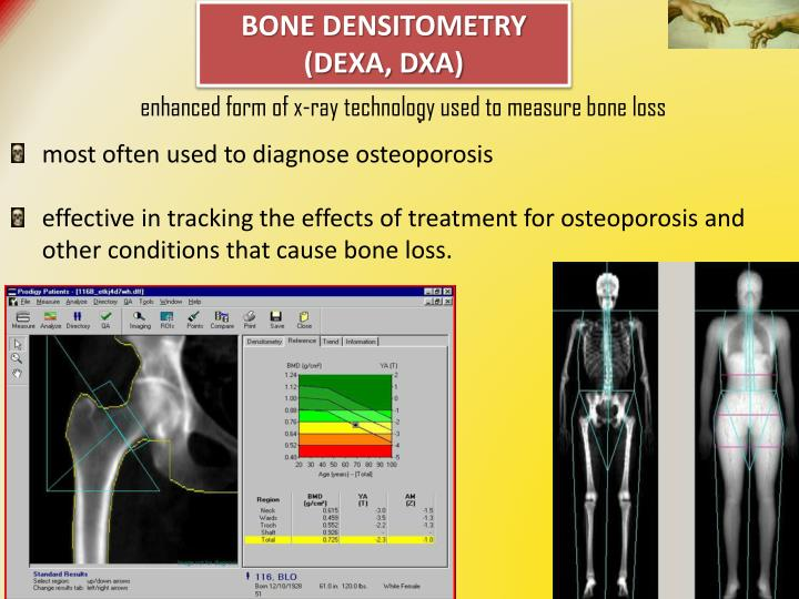 BONE DENSITOMETRY (DEXA, DXA)
