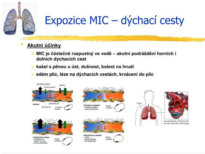 Expozice MIC – dýchací cesty