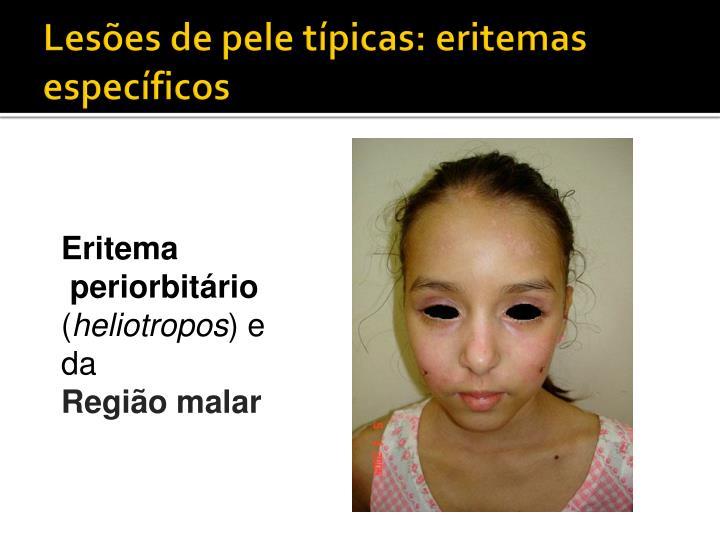 Lesões de pele típicas: eritemas específicos