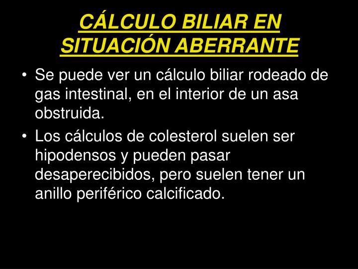 CÁLCULO BILIAR EN SITUACIÓN ABERRANTE