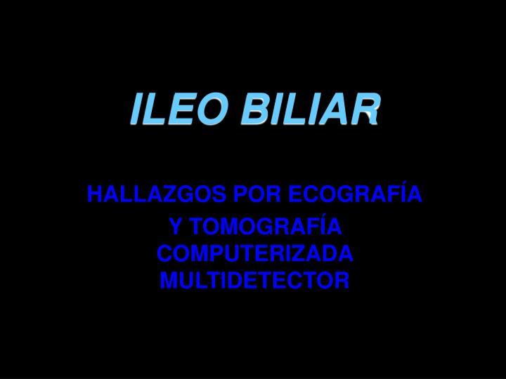 ILEO BILIAR