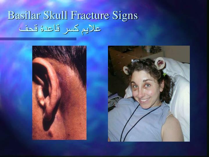 Basilar Skull Fracture Signs