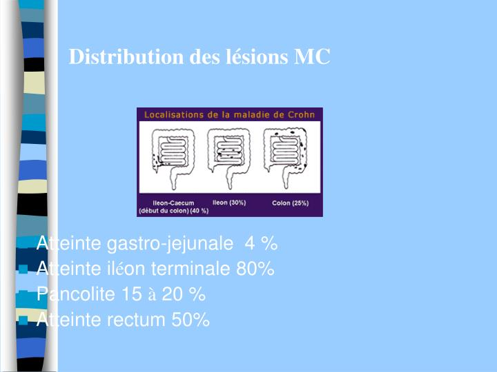 Distribution des l sions mc