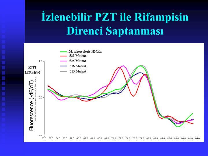 İzlenebilir PZT ile Rifampisin Direnci Saptanması
