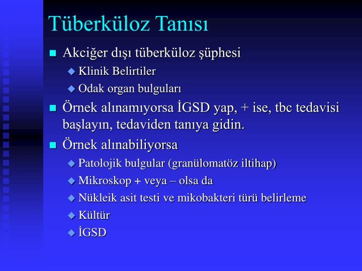 Tüberküloz Tanısı