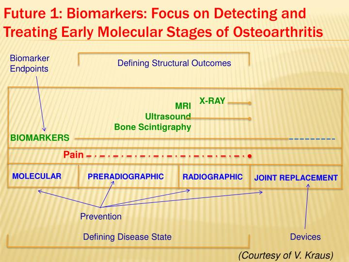 Future 1 biomarkers focus on detecting and treating early molecular stages of osteoarthritis