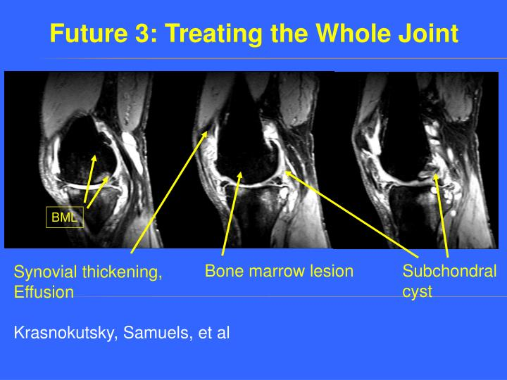 Future 3: Treating the Whole Joint