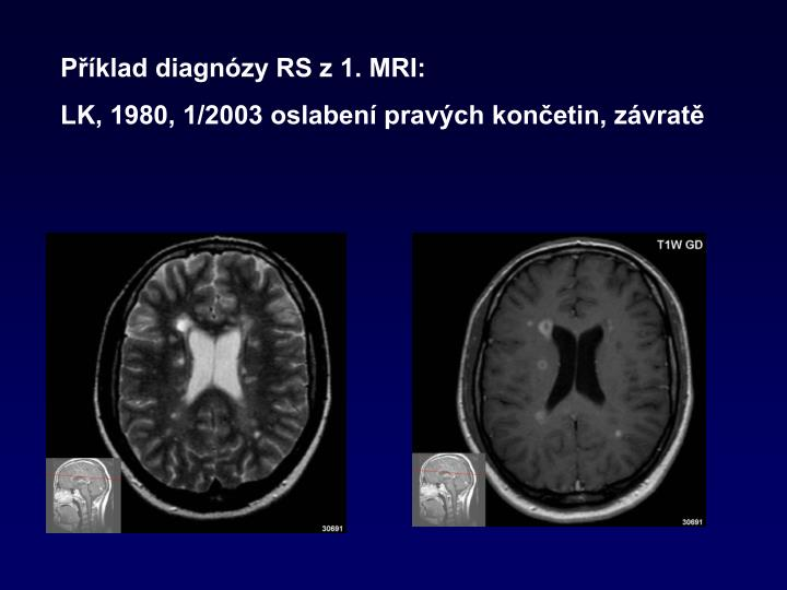 Příklad diagnózy RS z 1. MRI: