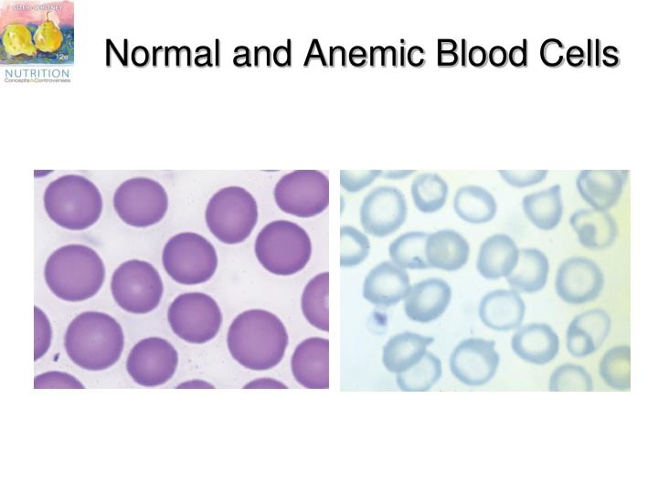Normal and Anemic Blood Cells