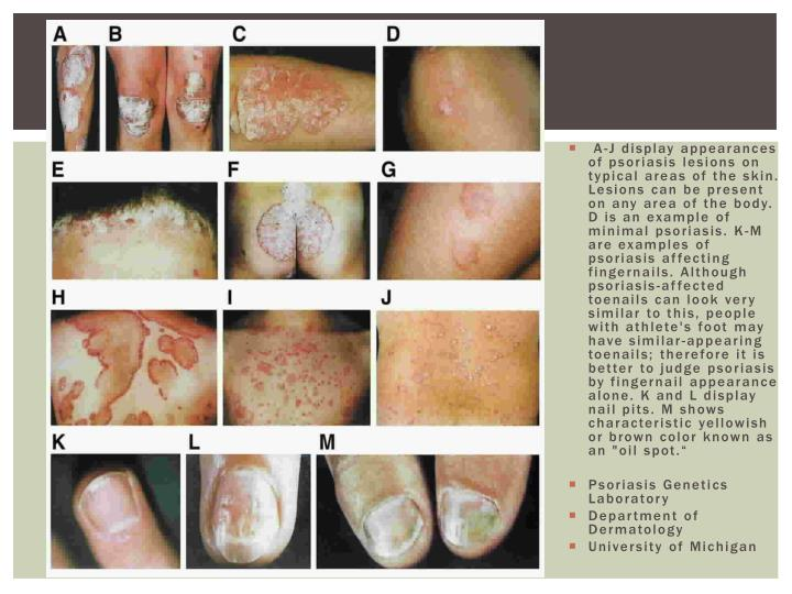 "A-J display appearances of psoriasis lesions on typical areas of the skin. Lesions can be present on any area of the body. D is an example of minimal psoriasis. K-M are examples of psoriasis affecting fingernails. Although psoriasis-affected toenails can look very similar to this, people with athlete's foot may have similar-appearing toenails; therefore it is better to judge psoriasis by fingernail appearance alone. K and L display nail pits. M shows characteristic yellowish or brown color known as an ""oil spot."""