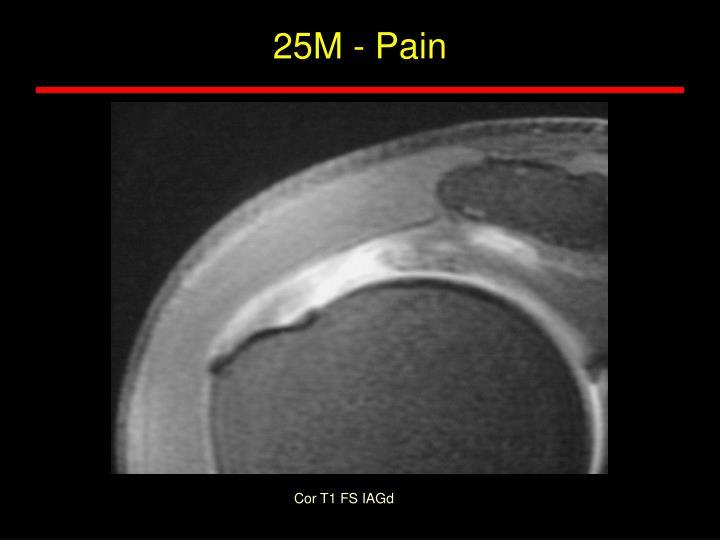 25M - Pain