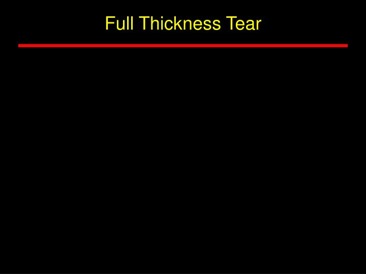Full Thickness Tear