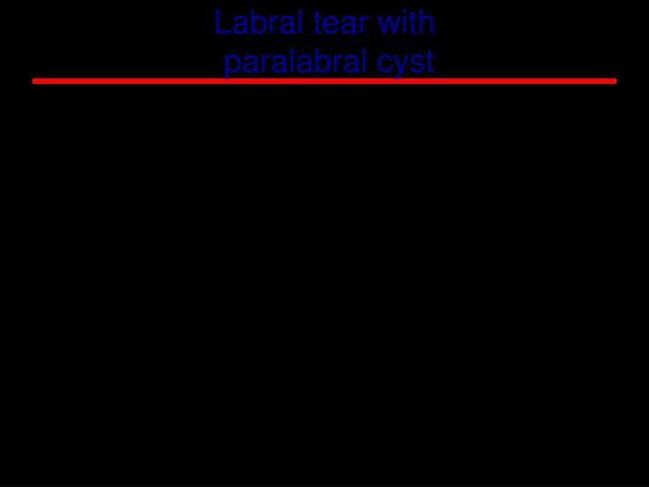 Labral tear with
