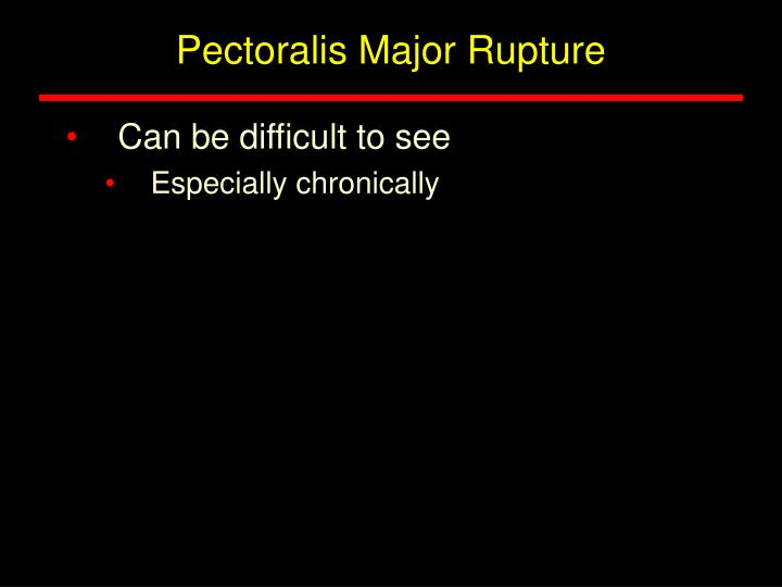 Pectoralis Major Rupture