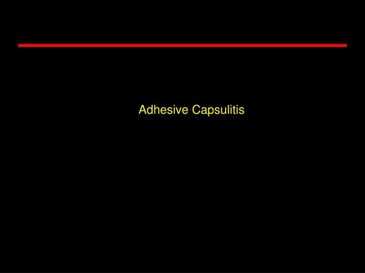Adhesive Capsulitis