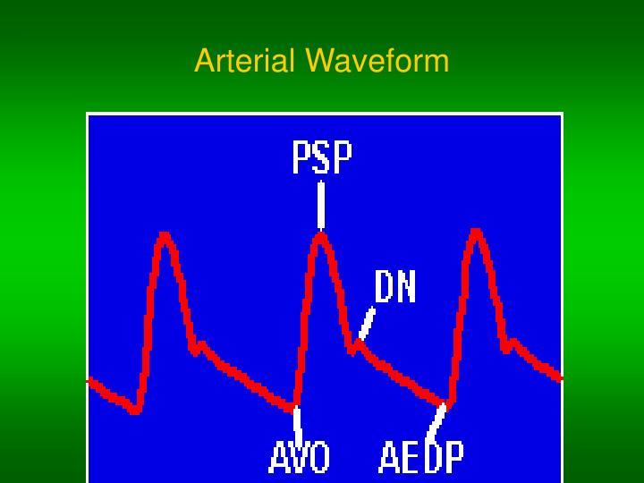 Arterial Waveform