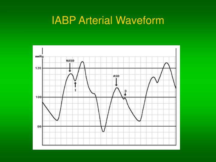 IABP Arterial Waveform