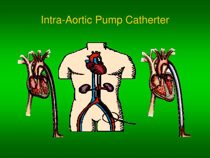 Intra aortic pump catherter