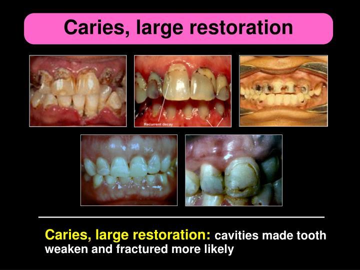 Caries, large restoration