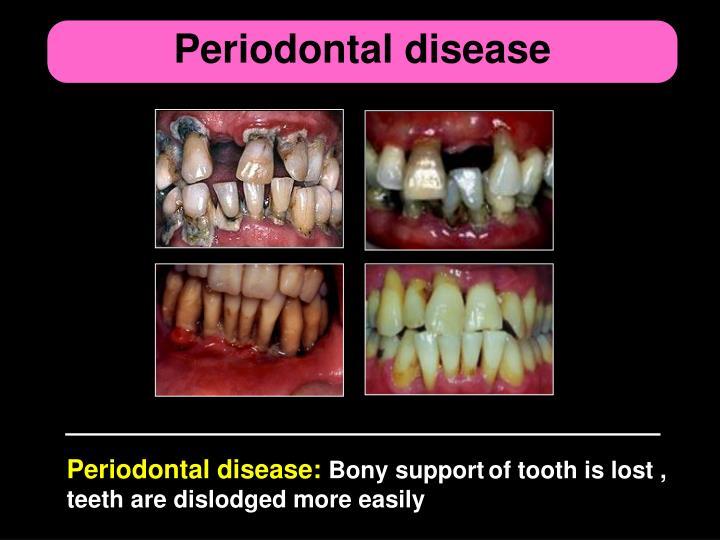 Periodontal disease