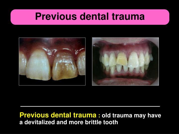 Previous dental trauma