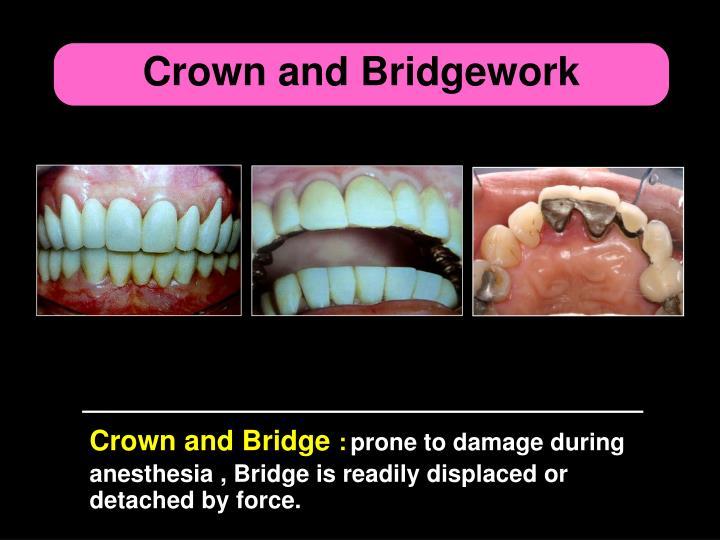 Crown and Bridgework