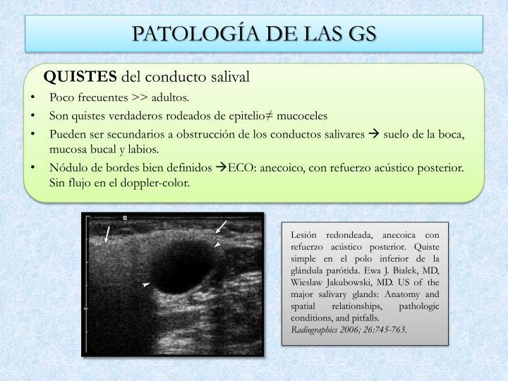 PATOLOGÍA DE LAS GS