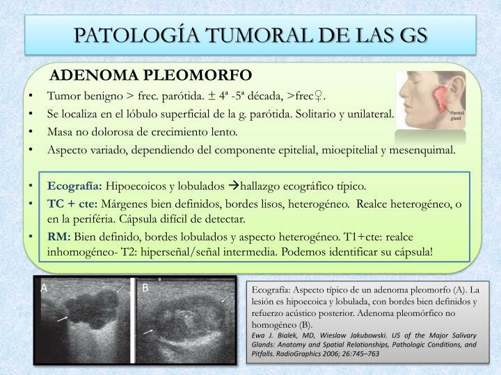 PATOLOGÍA TUMORAL DE LAS GS
