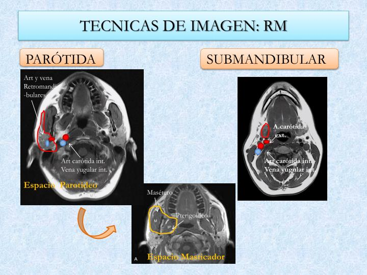 TECNICAS DE IMAGEN: RM