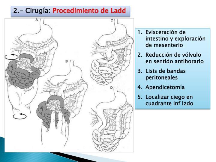 2.- Cirugía: