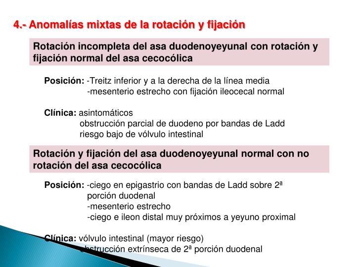 4.- Anomalías mixtas de la rotación y fijación