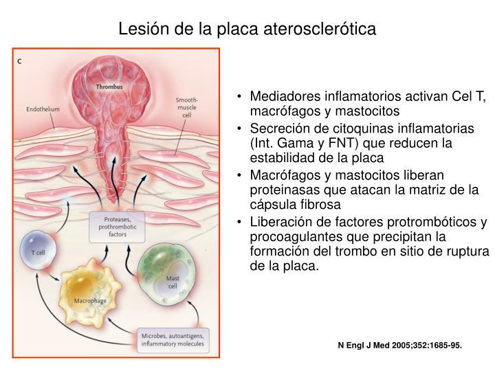Lesión de la placa aterosclerótica