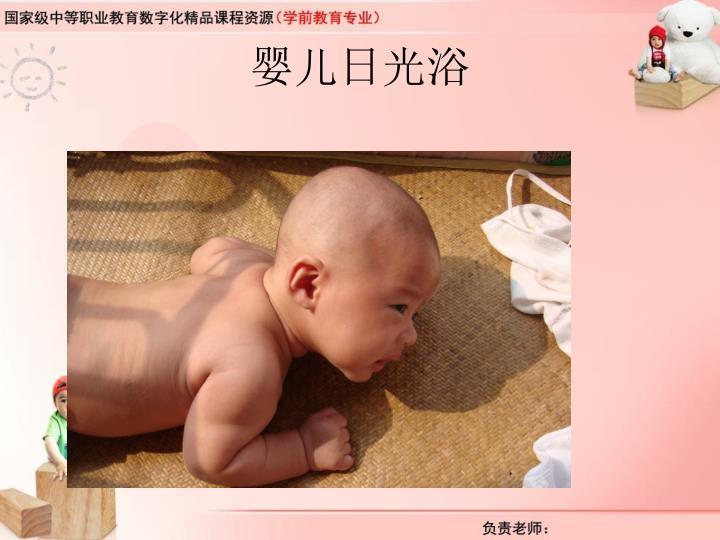婴儿日光浴
