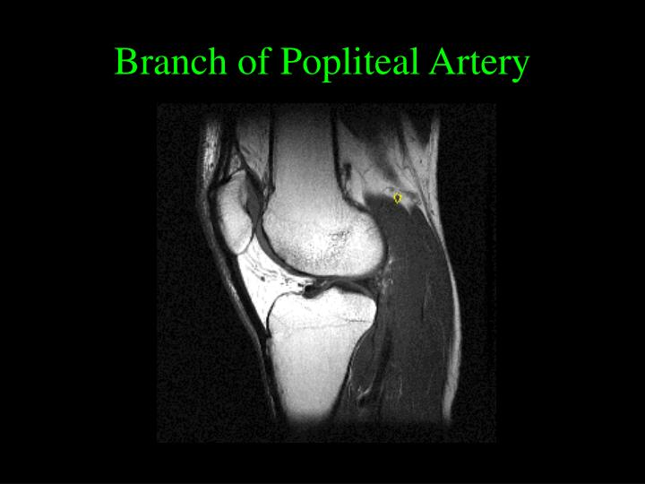 Branch of Popliteal Artery