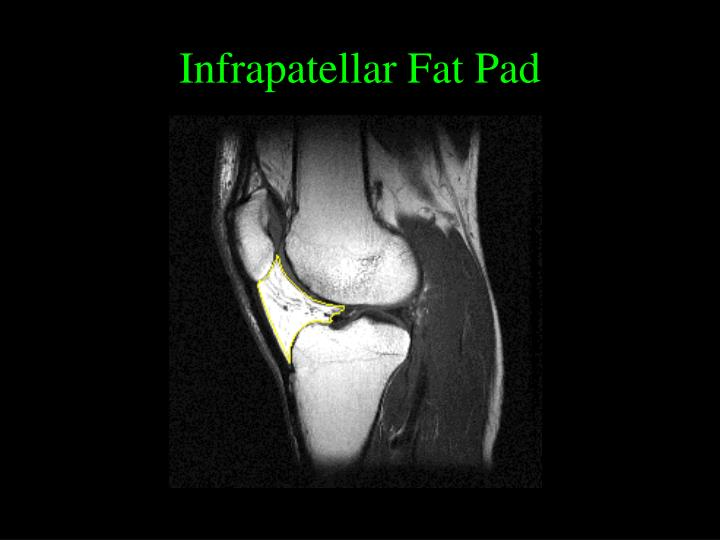 Infrapatellar Fat Pad