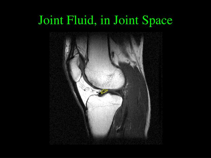 Joint Fluid, in Joint Space
