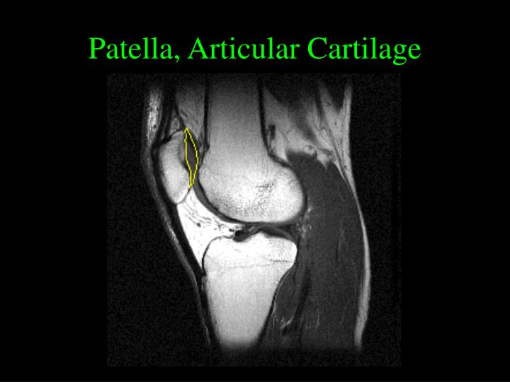 Patella, Articular Cartilage