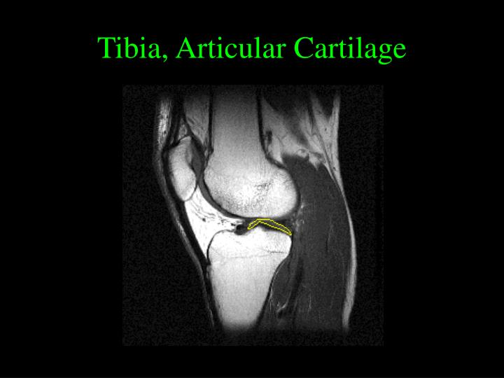 Tibia, Articular Cartilage