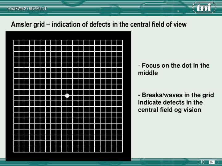 Amsler grid – indication of defects in the central field of view