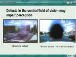 defects in the central field of vision may impair perception